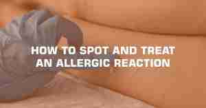 HOW TO SPOT AND TREAT AN ALLERGIC REACTION min