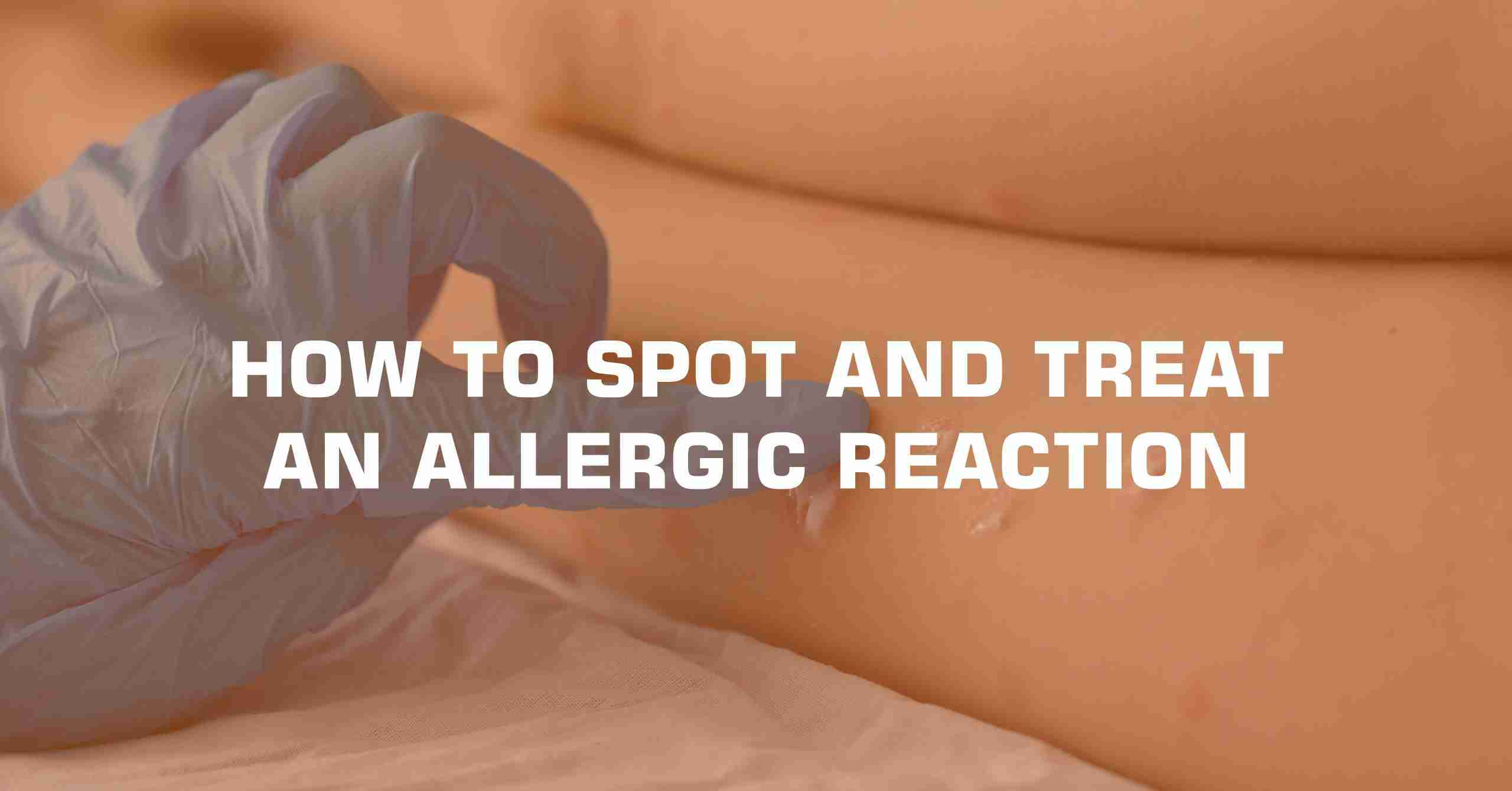 HOW TO SPOT AND TREAT AN ALLERGIC REACTION min scaled