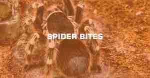 SPIDER BITES min